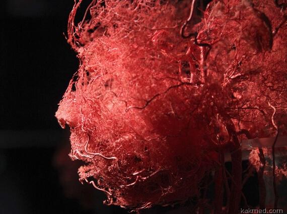 кровяные сосуды в голове