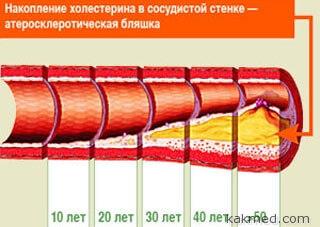 Ateroskleroticheskaya-blyashka