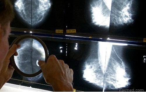 Смертность от рака в Европе