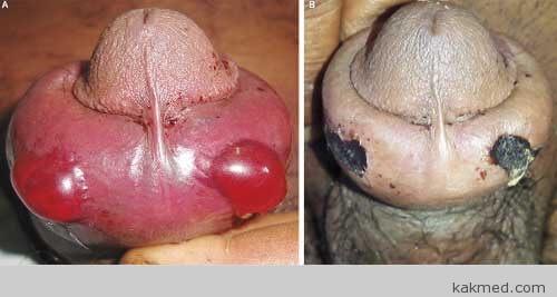 Половой член после укуса гюрзы