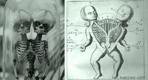 Двухголовые дети Прогноз Анатомия