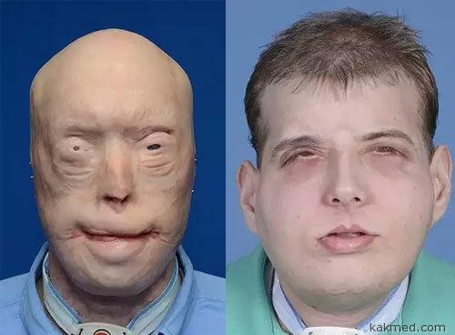 До и после трансплантации лица