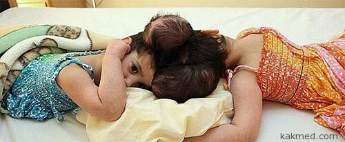 Тука и Якин Аль-Хадр, сирийские близнецы