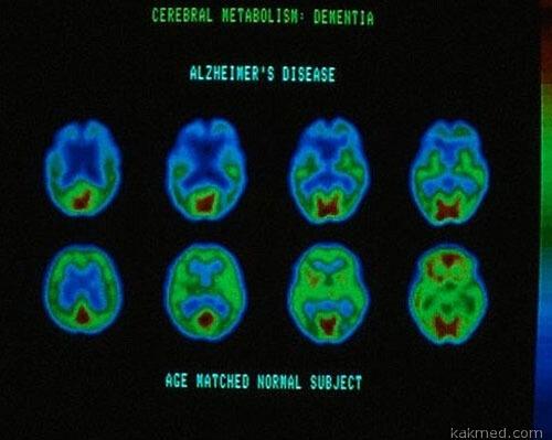 Сканирование мозга