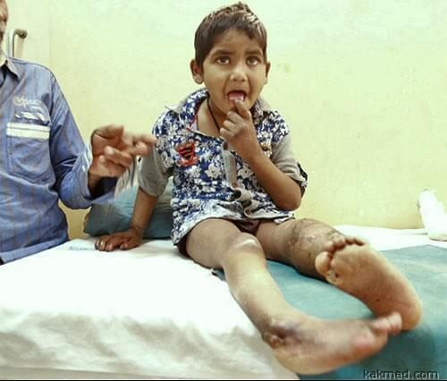 Врожденная анальгезия у мальчика