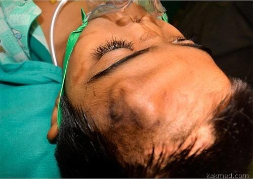 02-india-surgery