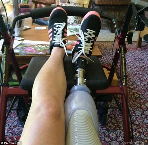 02-prosthetic