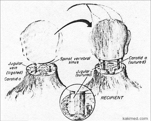 03-human-head-transplant