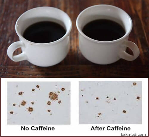 01-caffeine-parkinson