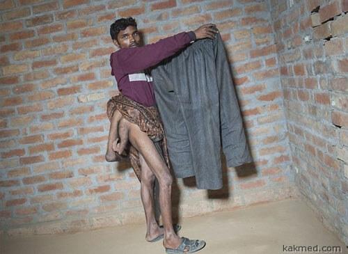 01-4-legged-man