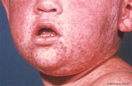 measles-rush