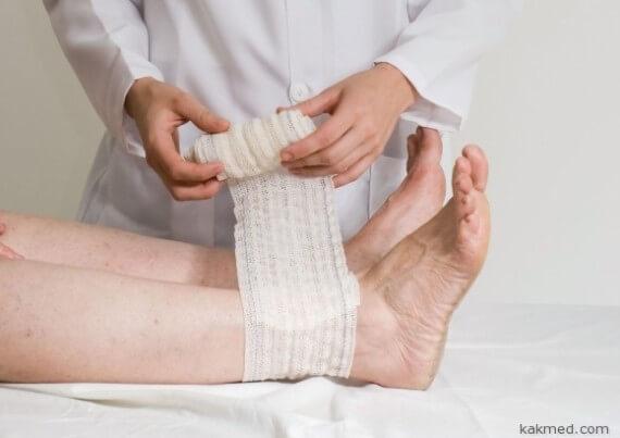 Гнойные раны на ногах