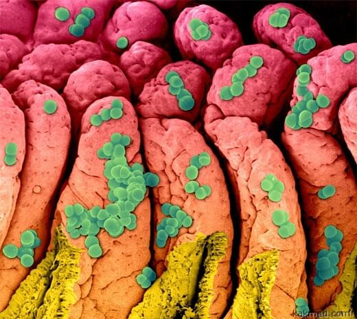 золотистый стафилококк в кишечнике