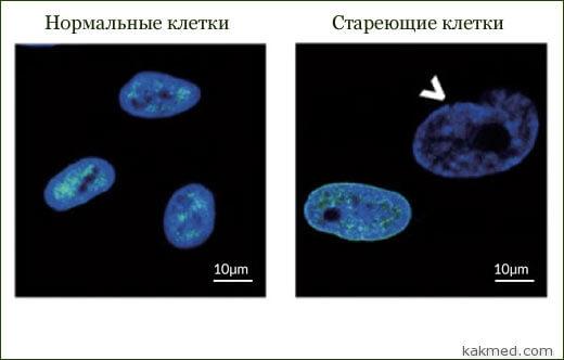старение живых клеток