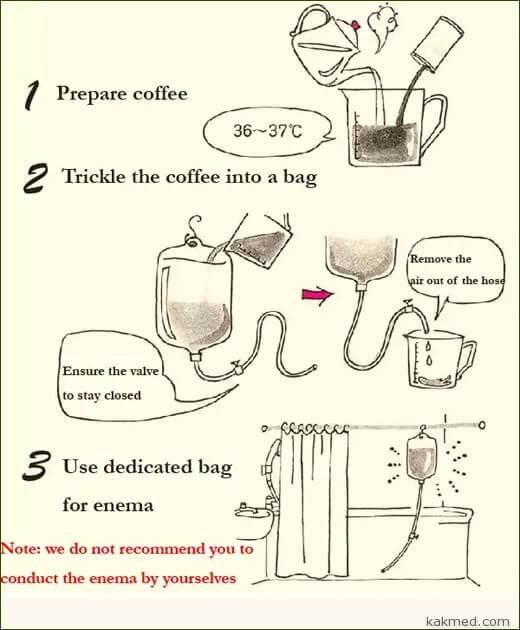 кофейная клизма как сделать