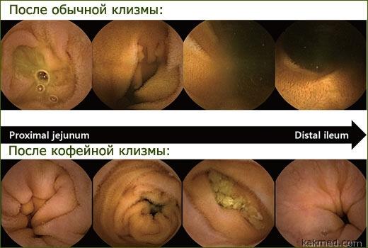 эндоскопия после кофейной клизмы