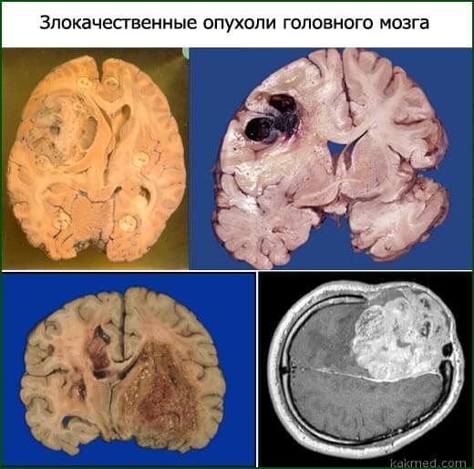 злокачественные опухоли мозга