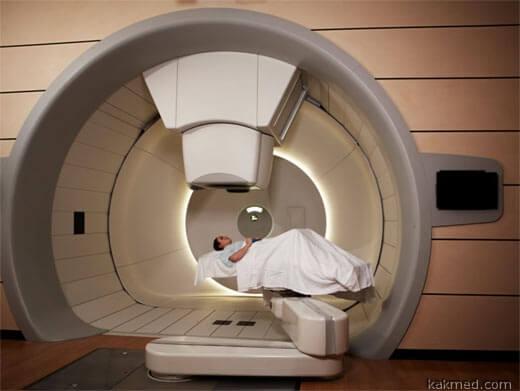 опухоль мозга лучевая терапия