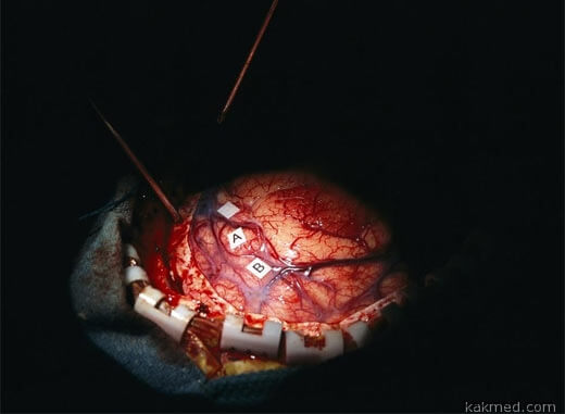 опухоль мозга операция