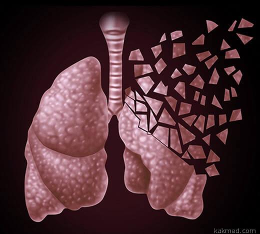 рак легкого симптомы и стадии