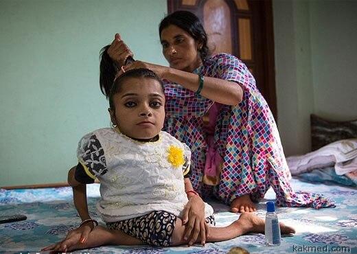 редкая болезнь в Индии