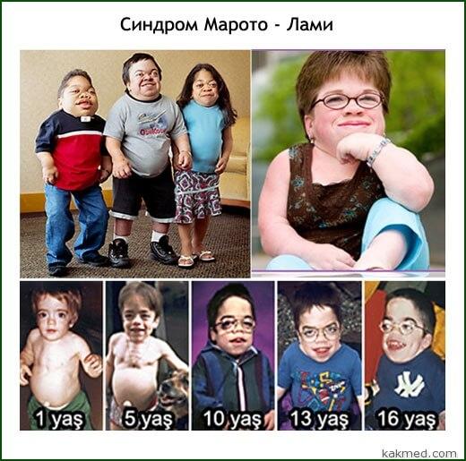 синдром марото-лами