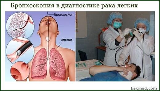 бронхоскопия диагностика рака легкого
