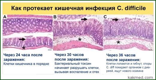 клостридия инфекция