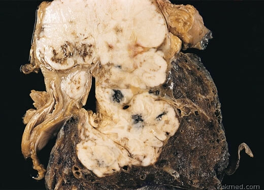 крупноклеточная карцинома