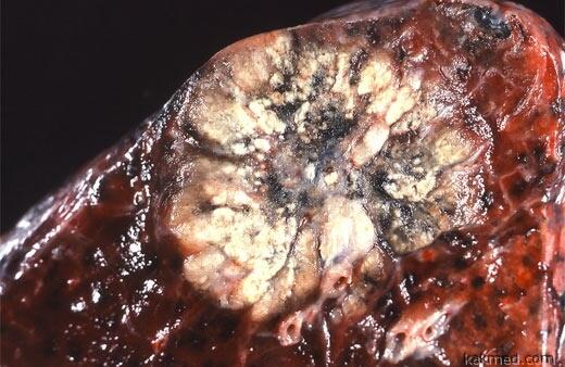 аденокарцинома легкого фото