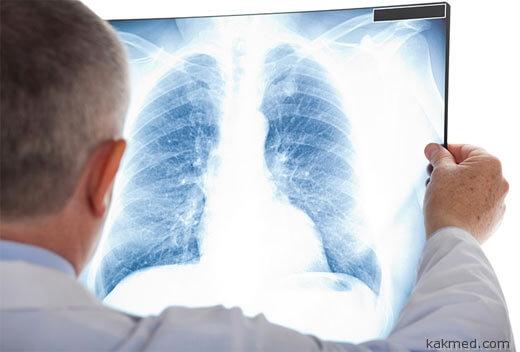 рак легкого скрининг снимок