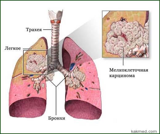 мелкоклеточный рак