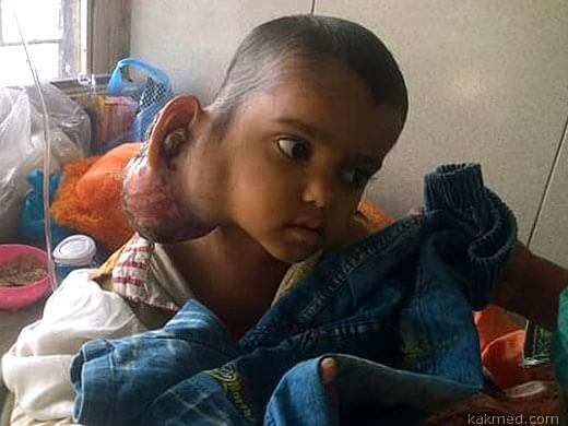 рабдомиосаркома у мальчика 4 лет