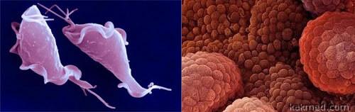 Трихомониаз может быть предшественником рака простаты