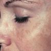Пигментные пятна на лице: 4 простых  домашних способа лечения